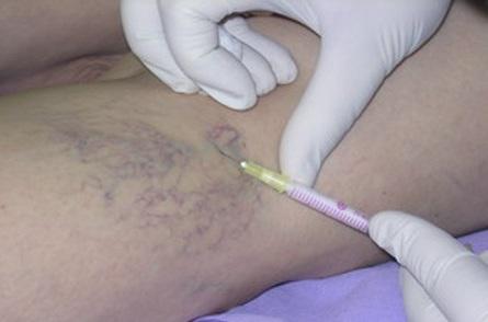 Мікросклеротерапія