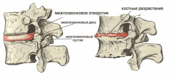 Пошкоджені диски при остеохондрозі.