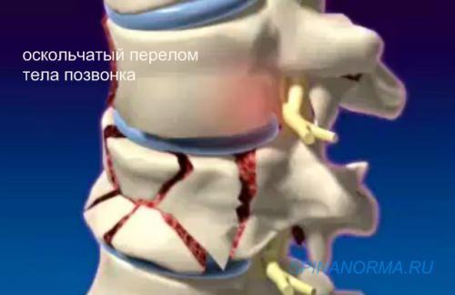 Осколковий перелом тіла хребця.