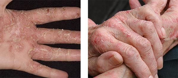 При порушенні обмінних процесів, шкіра починає лущитися.