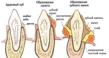 Утворення зубного нальоту і каменю