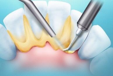Зняття зубного каменю ультразвуком
