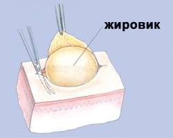 Пухлина
