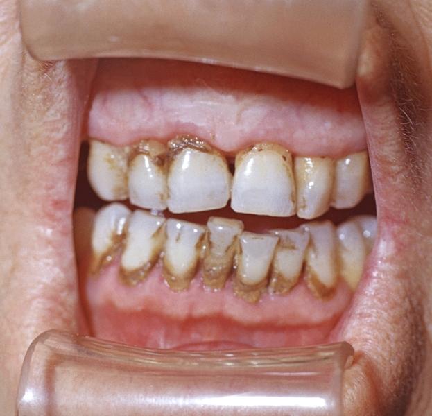 Зубний камінь і як він виглядає.