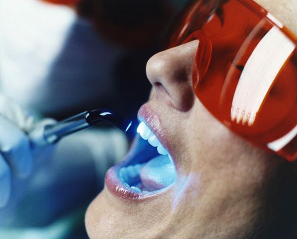Лазерне видалення зубного каменю.
