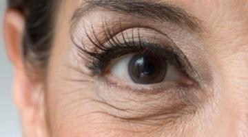 Як боротися зі зморшками під очима?