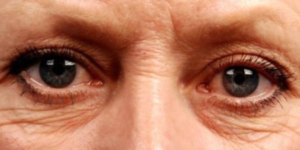 Чому з'являються зморшки під очима?