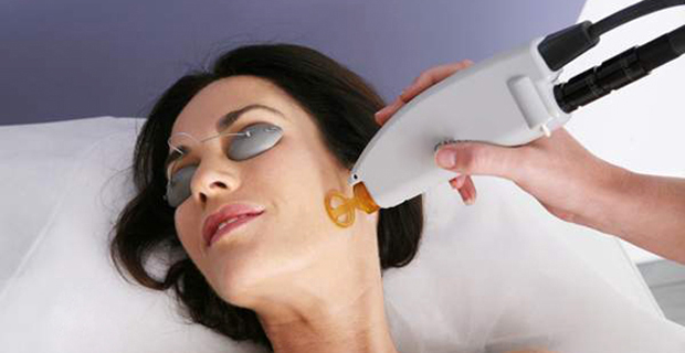 Лазерне лікування акне