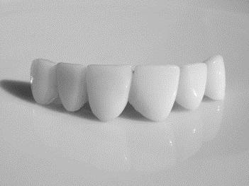 Коронки на передні зуби