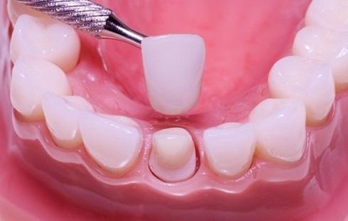 Установка зубної коронки