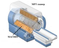 Магнітно-резонансний томограф в розрізі.