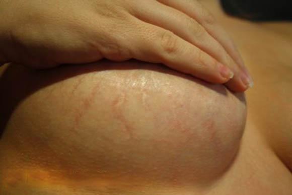 Павукові вени на грудях можуть бути нестандартним ознакою вагітності.