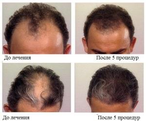 Приклад до і після процедур.