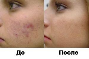 Приклад до процедури і після.