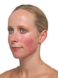 rozacea-simptomy-prichiny-vozniknoveniya-i-lechenie