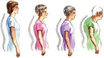 Дифузний остеопороз є віковим захворюванням.