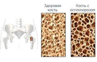 При остеопорозі знижується щільність кісток.