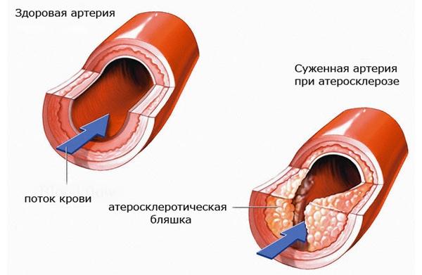 Атеросклероз хребетної артерії.