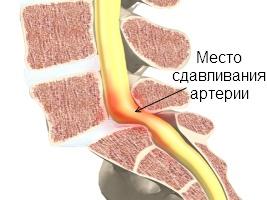 Здавлювання хребетної артерії.