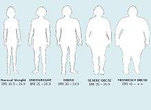 Класифікація та ступеня ожиріння