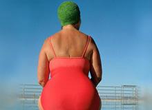 Які існують типи ожиріння?