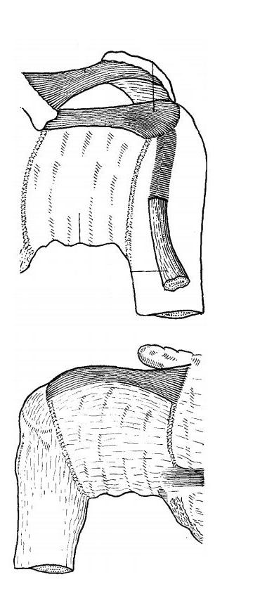 Анатомія плечового суглоба
