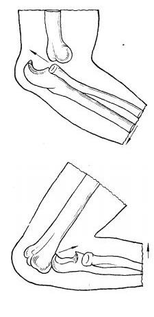 Задній і передній вивихи ліктьового суглоба