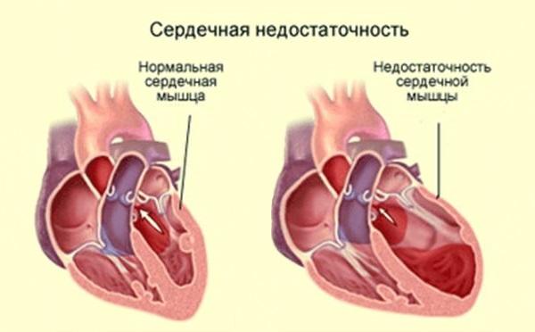 Серцева недостатність також може служити причиною запору.